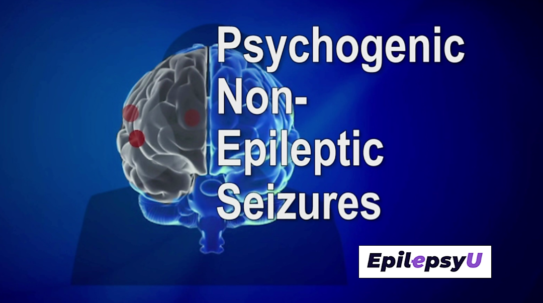 psychogenic nonepileptic seizures a guide